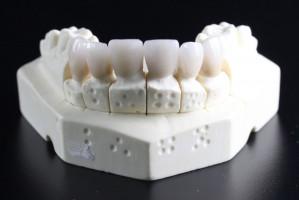 Technik dentystyczny – przedmiotem sporu