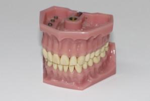 Higiena stomatologiczna i technika dentystyczna do uregulowania