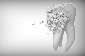 W Wielkiej Brytanii zniechęcają do opieki stomatologicznej