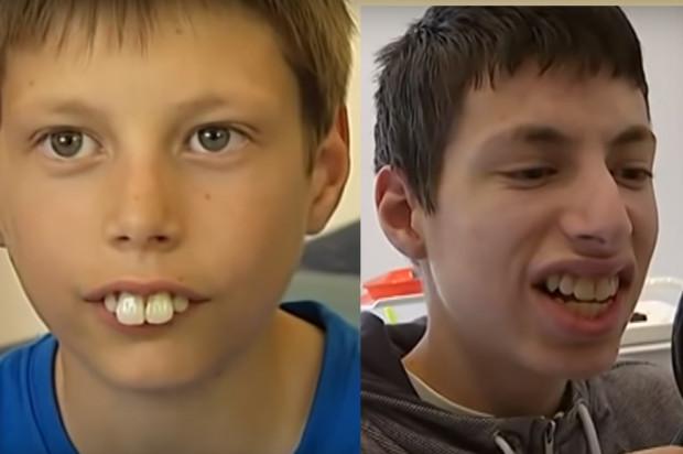 """Redukcja """"króliczych"""" zębów"""