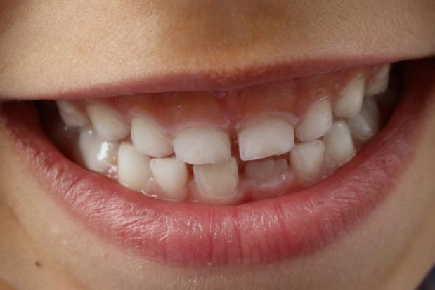 O ryzyku depresji świadczą zęby mleczne!