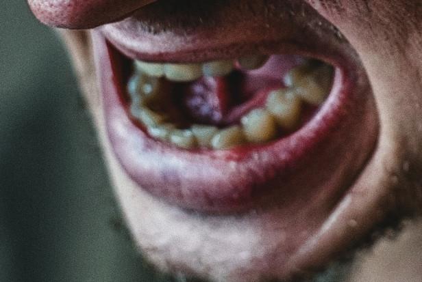 Chore zęby, chory organizm