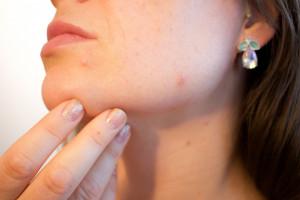Botoksem można leczyć dysfunkcje stawu skroniowo-żuchwowego