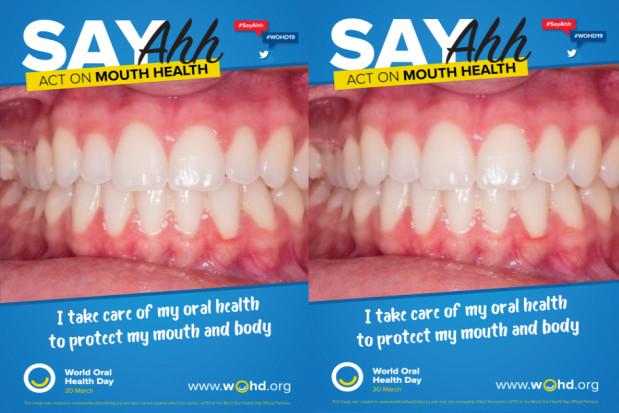 ŚDZJU: zdrowie jamy ustnej a choroby nowotworowe