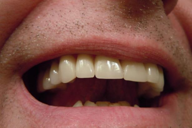 Zgrzytanie zębami na usługi stomatologiczne