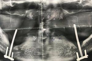 """Implanty """"zrób to sam"""" zszokowały chirurgów"""
