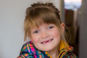 Stomatologia dziecięca: współczynnik korygujący w górę