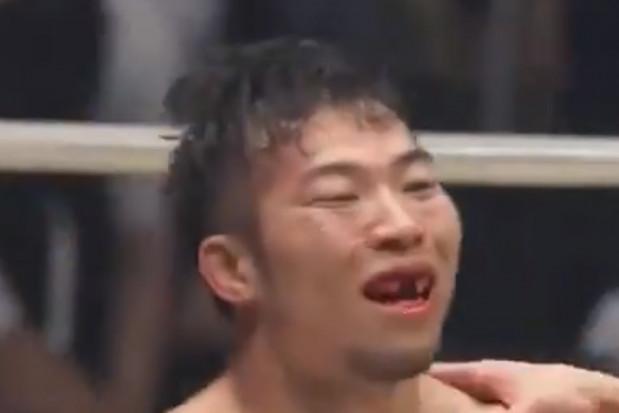 MMA: czy jest na sali dentysta?