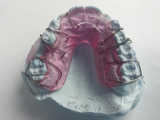 Brak ortodontów i co dalej?