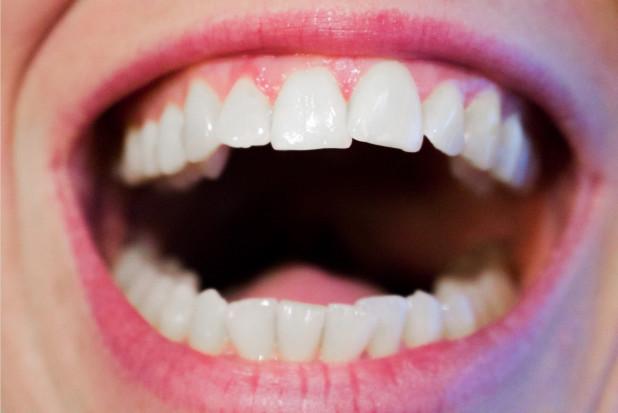Dentysto wesprzyj projekt PTS