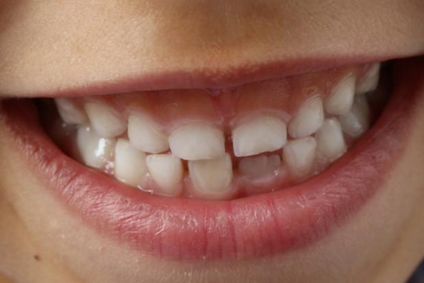 Pierwsza zasada szczotkowania zębów: ufaj i kontroluj