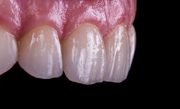 Higiena jamy ustnej skrojona na miarę pacjenta