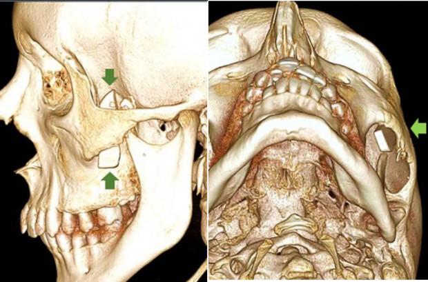 3,5 cm odłamek szkła w okolicy kości policzkowych przeoczony przez lekarzy