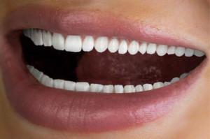 Reklama na 60 zębów