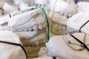W Berlinie poszukują polskich techników dentystycznych
