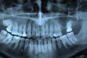 O stomatologii w jednolitym tekście ustawy Prawo atomowe