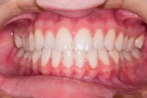 Utratę zębów odchoruje serce