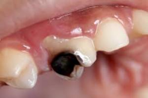 Szwecja: niehumanitarne stomatologiczne eksperymenty