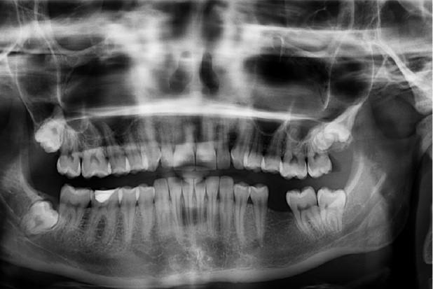 Radiologia stomatologiczna: przepis przejściowy w Prawie atomowym