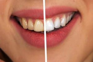 Dentyści walczą o większe nakłady na stomatologię. Sytuacja jest kryzysowa.