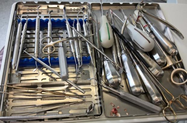 Zapalenie wsierdzia po ekstrakcji zęba
