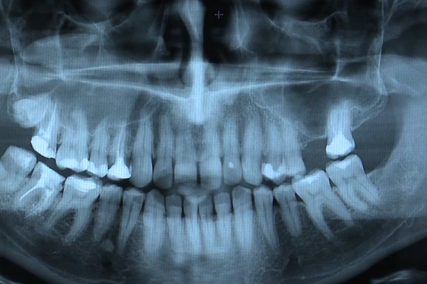 NIL przypomina o formalnościach z zakresu radiologii