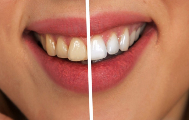 Piękne zęby zapewnią zawodowy sukces?