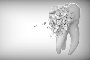 Koronawirus: wzrośnie liczba pacjentów, którym brakuje zębów?