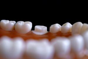 Pacjent zakażony u dentysty: procedury bezpieczeństwa nie są nowością