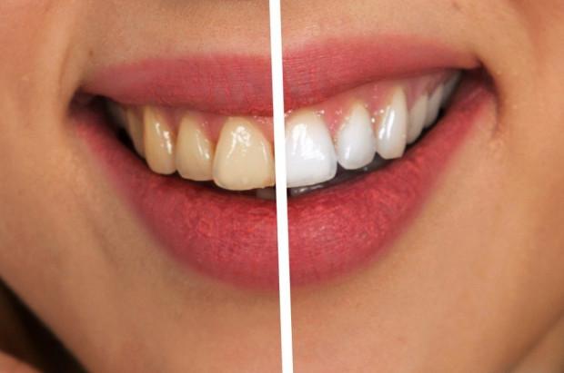 Spokojnie, Polacy deklarują zamiar szybkiego udania się do dentysty