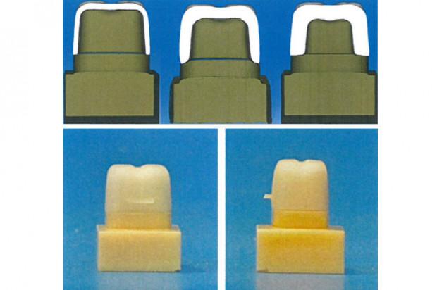 Żywica fotopolimerowa wyzwaniem dla standardowych uzupełnień ceramicznych