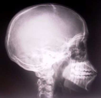 Stomatologia: obowiązek informowania o wpływie poddawania się zdjęciom rtg na organizm