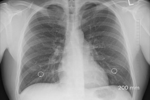Co trzeci pacjent wyleczony z Covid-19 będzie mieć problemy z układem oddechowym