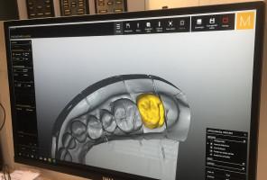 Dentyści uporczywie pytają NFZ o telemedycynę