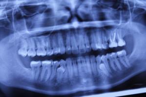 Stomatolog wykona badanie w kierunku osteoporozy