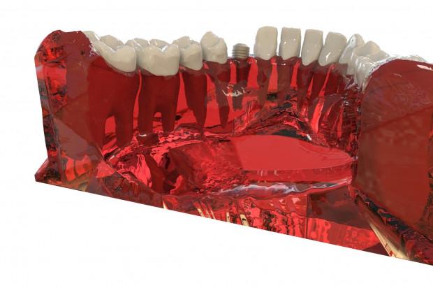 Nieleczone zatoki i implanty stomatologiczne