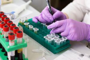 Testy na SARS-CoV-2 przed leczeniem stomatologicznym w szpitalu