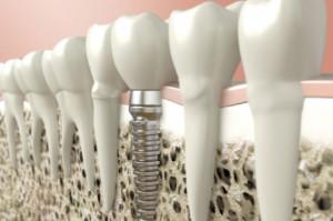Nowa przeciwzapalna powłoka implantów
