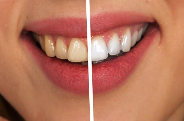 Wybielanie zębów na topie świadczeń stomatologicznych