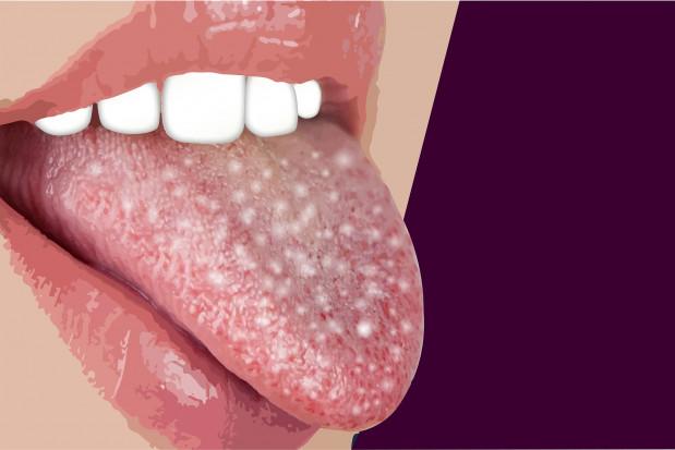 Zmiany śluzówki jamy ustnej objawem COVID-19