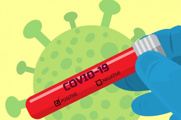 Możliwa już masowa diagnostyka koronawirusa