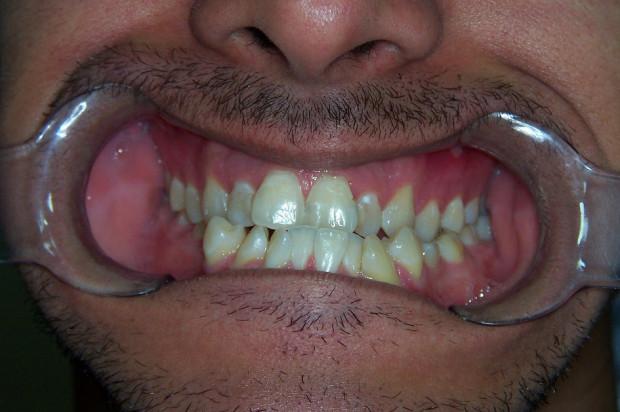 Rezonans u pacjentów ortodontycznych