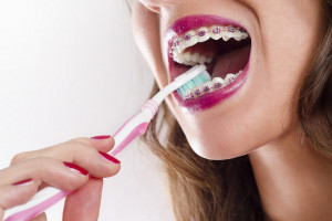 Aparat ortodontyczny - wyzwaniem