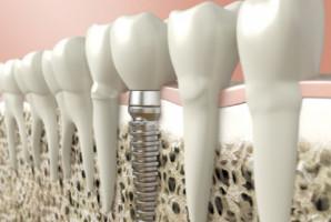 Nastają implanty zębowe imitujące skrzydła owadów?