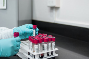 Przesiewowe testy PCR nie dla uczestników staży zawodowych w podmiotach leczniczych