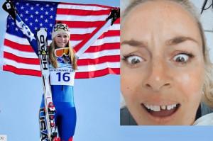 Lindsey Vonn dworuje sobie z niedostatków uzębienia