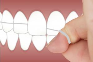 Tylko 42 proc. pacjentów nitkuje zęby