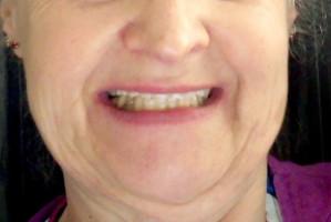 Brytyjska pacjentka z rozżaleniem o turystyce stomatologicznej