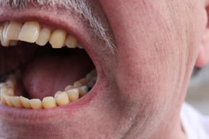 Lżą i atakują fizycznie dentystów