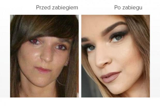 Wady zgryzu - problemem ponad 90 proc. Polaków